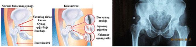 Bud çanaq oynağı endoprotezlesdirilmesi Artroplastika