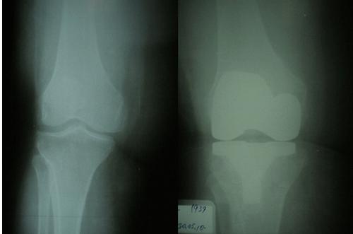 Diz-protezi
