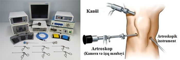 artroskop2