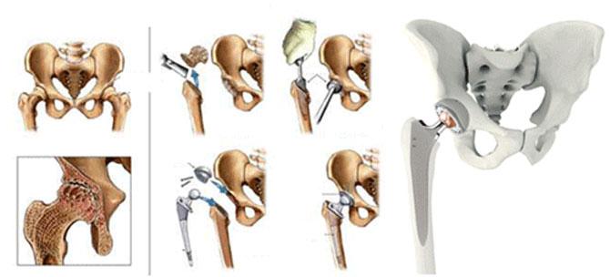 bud çanaq oynağı endoprotezləşdirilməsi artroplastika