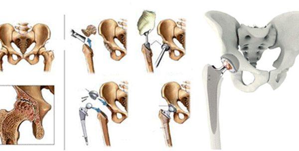 Bud-çanaq oynağı endoprotezləşdirilməsi (Artroplastika)