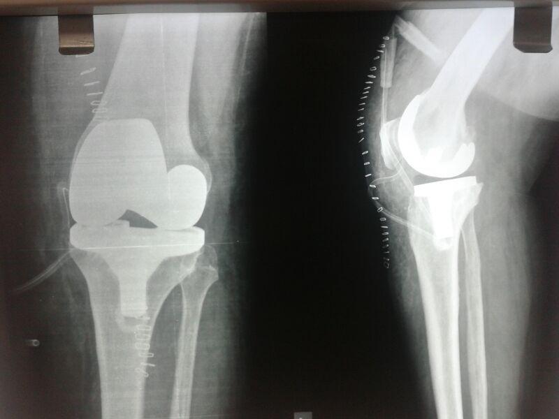 diz-protezi-qığırdağı