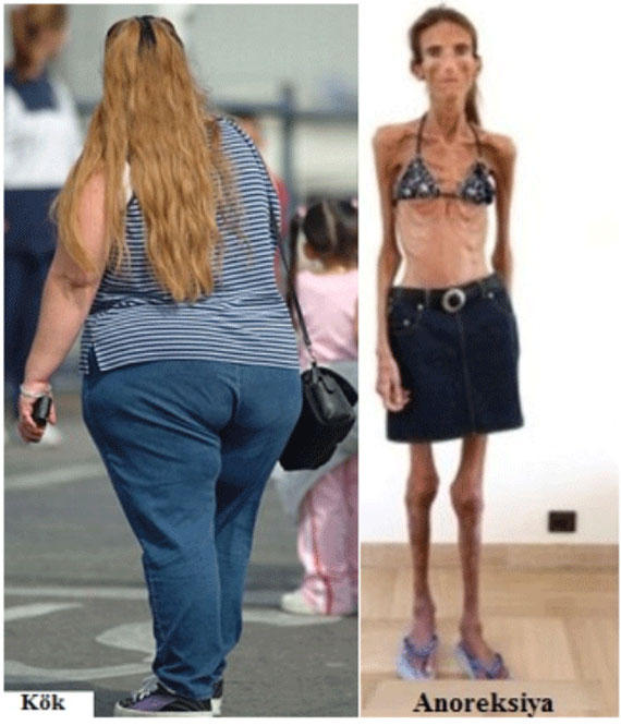 kok-anoreksiya