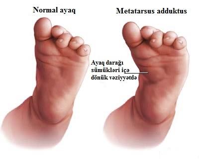 Metatarsus adduktus (anadangəlmə ayaq ön hissəsində içə tərəf əyrilik)