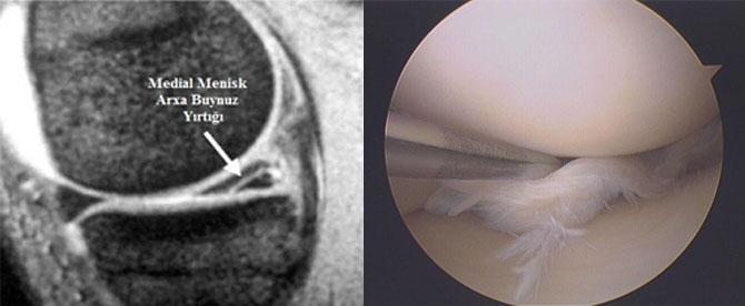 medial menisk arxa buynuz yırtığı