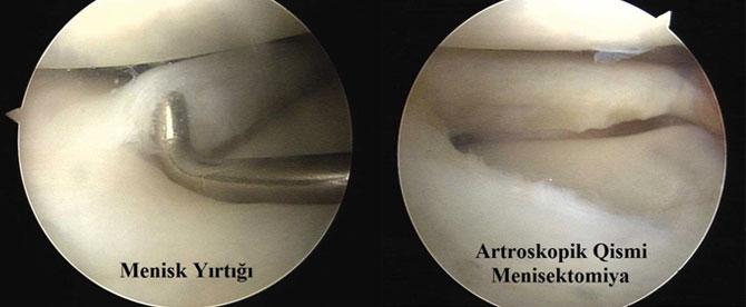 Menisektomiya (meniskin yırtıq qisminin alınması)