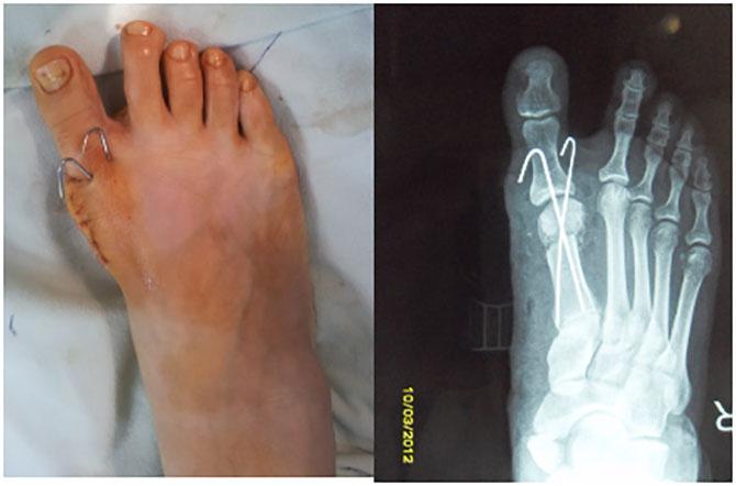 Osteotomiya-posop