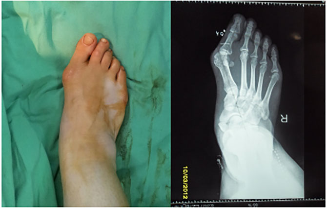 Osteotomiya-preop