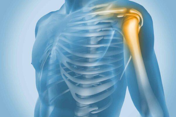 Çiyin ağrılarının səbəbləri və müalicəsi